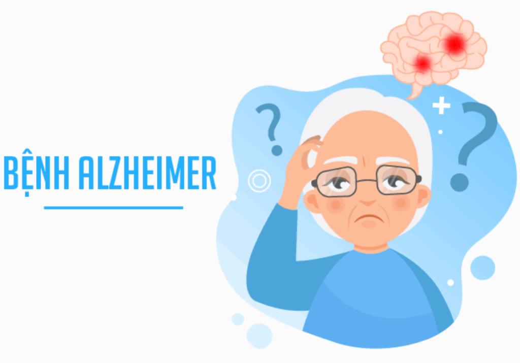 Bệnh alzheimer ở người cao tuổi