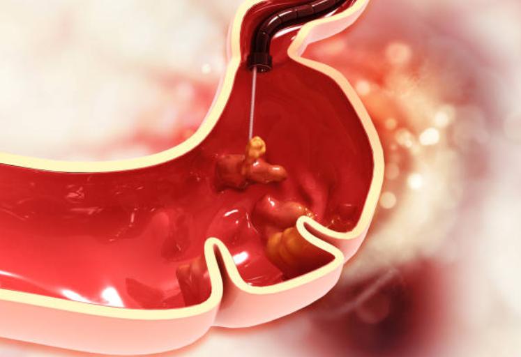 xuất huyết bao tử và cách điều trị